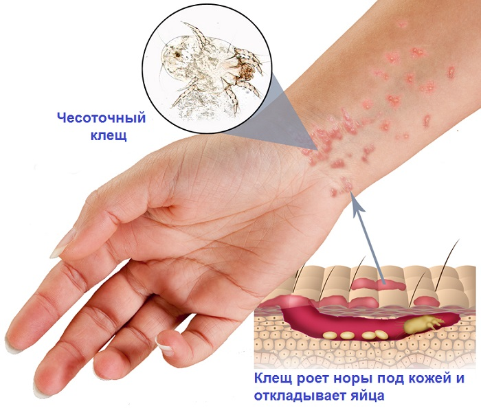 Вызов дерматолога на дом